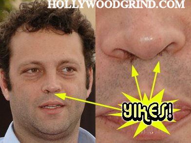 Vince Nose Hair 1